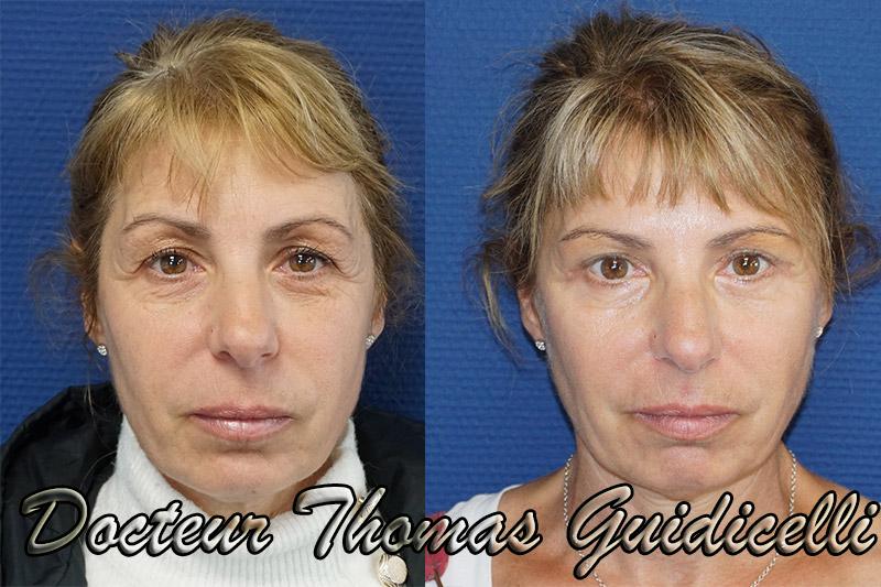 Résultat d'une blépharoplastie associée à des injections de botox et d'acide hyaluronique