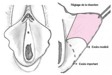 Sexualit et risque de mycose vaginale - Doctical