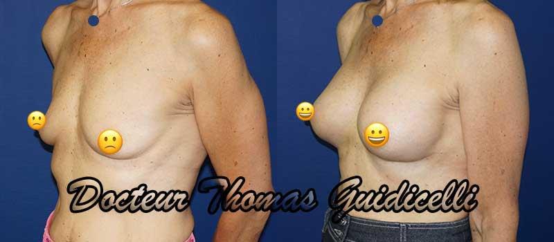 photo avant après prothese mammaire anatomique 300cc 3/4