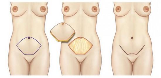 Chirurgie esthétique du pénis