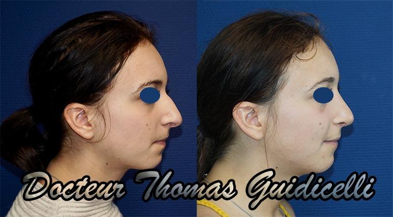 photo avant après une rhinoplastie par voie externe de profil