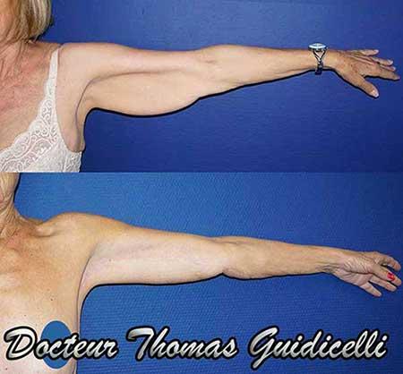 Résultat d'un lifting des bras après un amigrissement, cicatrice à 1 an