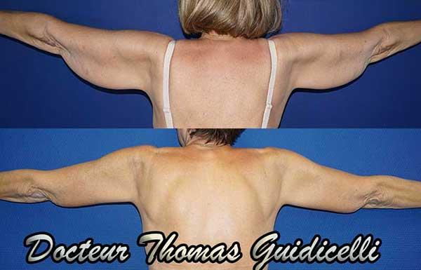 Photo avant après un lifting des bras après amaigrissement
