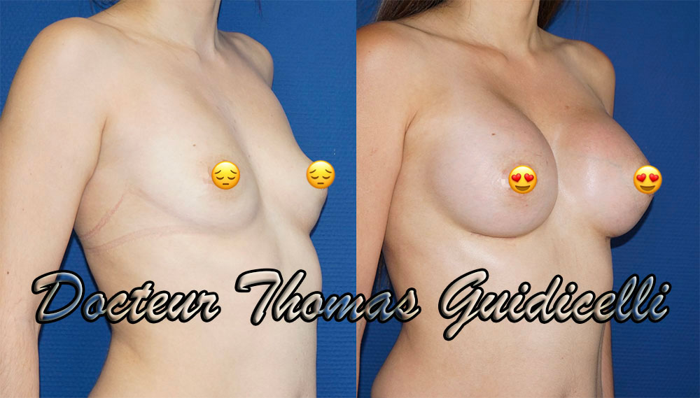 avant apres protheses mammaires motiva ergonomix ersf 375cc de 3/4