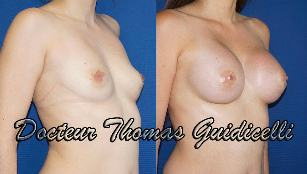 avant après prothese mammaire motiva ergonomix ersf 355cc de 3/4