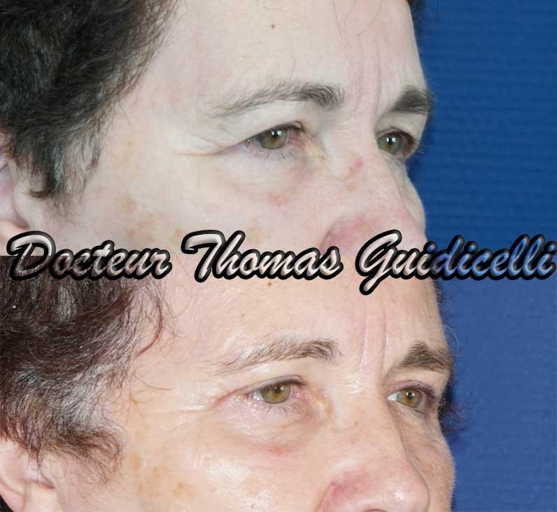 Photo avant après une blépharoplastie supérieure