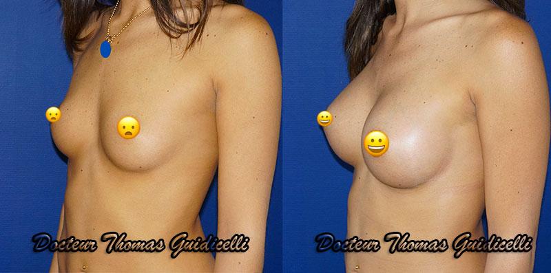 Augmentation mammaire par protheses mammaires rondes 320cc, voie sous mammaire de 3/4
