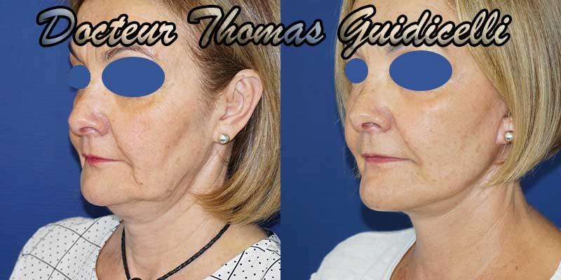 Photo avant après un lifting du visage de 3/4, traitement de la bajoue, disparition des rides d'amertumes et restauration de l'ovale