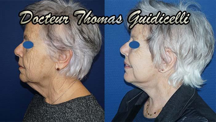 Photo avant après un lifting du visage avec lipofilling et blépharoplastie de profil