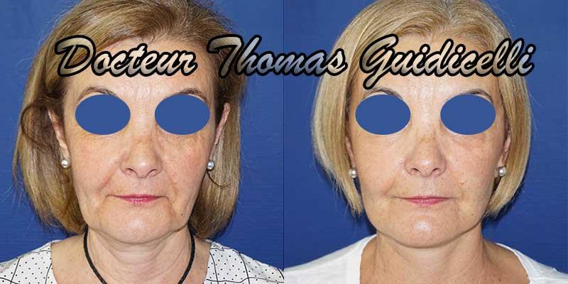 Photo avant après un lifting du visage de face