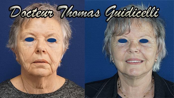 Photo avant après un lifting du visage avec lipofilling et blépharoplastie de face