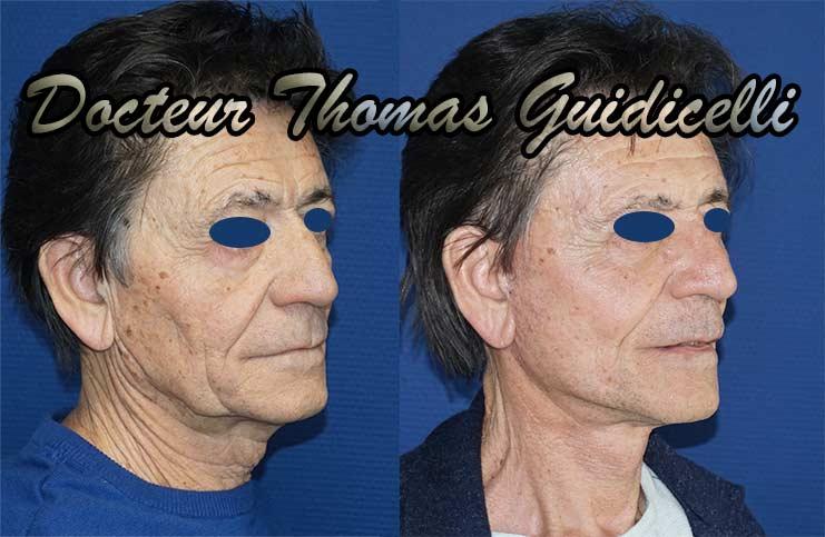 photo avant après lifting visage et cou chez un homme de 3/4