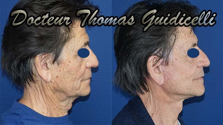 photo avant après lifting visage et cou chez un homme de profil