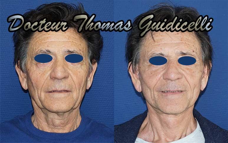 photo avant après lifting visage et cou chez un homme de face