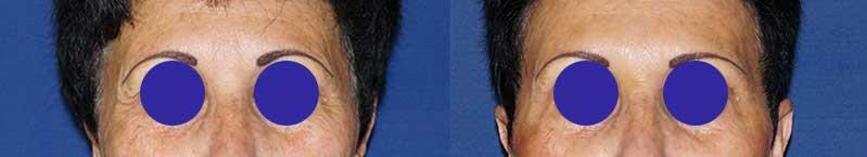 Résultat d'une séance de botox sur le front et la patte d'oie