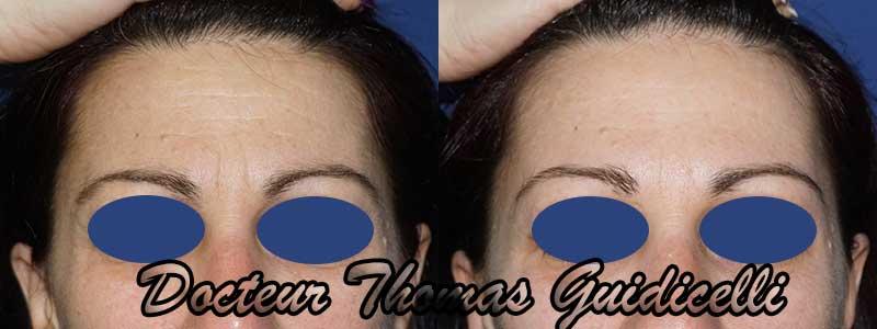 image avant après botox visage