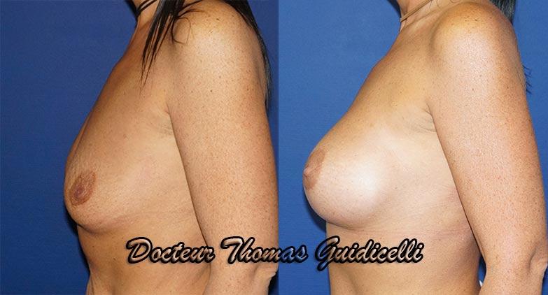Photos avant après prothèses mammaires anatomiques 395cc de profil
