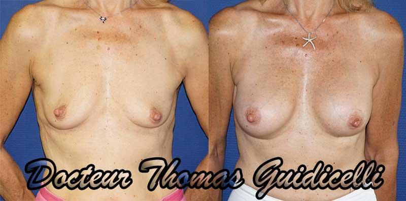 Photo avant apres prothese mammaire anatomique sur une ptose mammaire