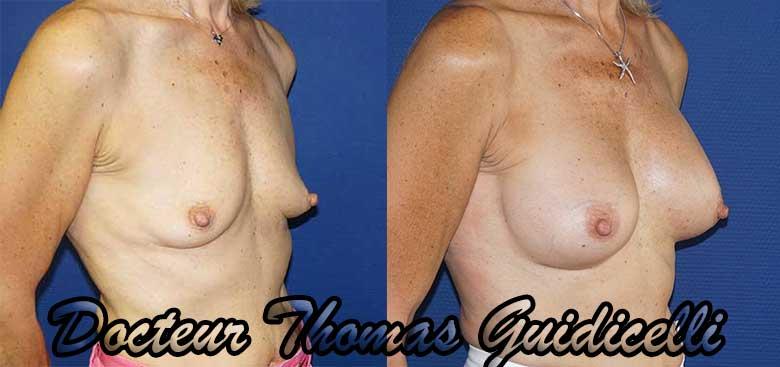 avant après prothèses mammaires anatomiques de 300cc