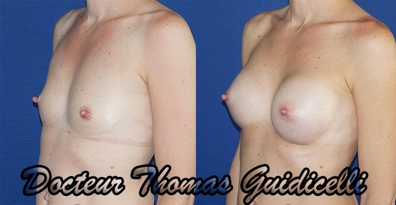 Photographie avant après prothèse mammaire Ergonomix 320 cc de 3/4