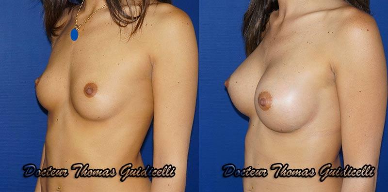 Prothèse mammaire rondes 320 cc