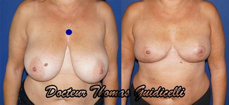 Photographie avant après une réduction mamaire