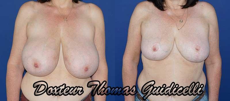 Photo avant après une réduction mammaire de 750 grammes de face