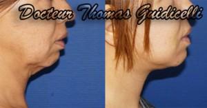 Lifting du visage cervico-facial