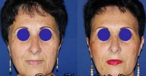 Médecine esthétique (botox et acide hyaluronique)
