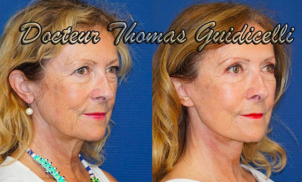 Avant après un lifting du visage et du cou à Aix en Provence