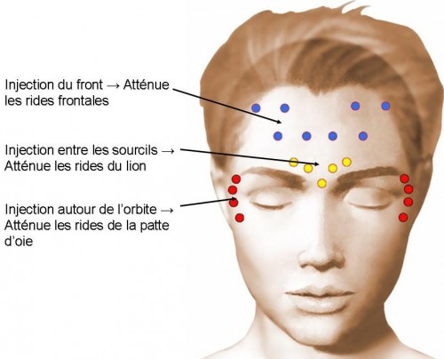 formation injection toxine botulique)