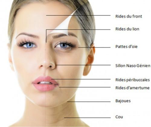 Les causes de rougissement du visage - santfitness
