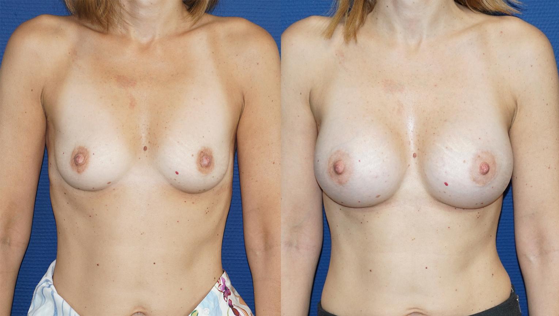 avant après Augmentation mammaire prothèse ronde 285 cc de face