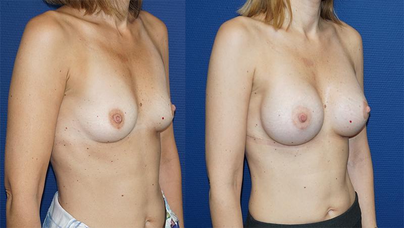 avant après Augmentation mammaire prothèse ronde 285 cc