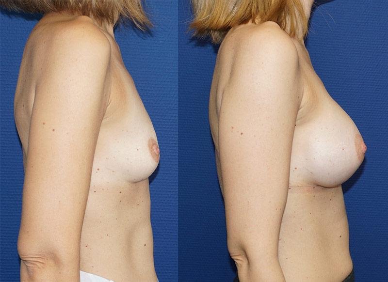avant après Augmentation mammaire prothèse ronde 285 cc de profil