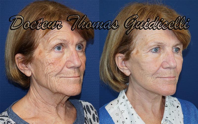 Résultat lifting visage et cou avant après avec blépharoplastie et lipofilling