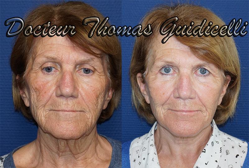 Résultat lifting cervico-facial avec chirurgie des paupières et injection de graisse